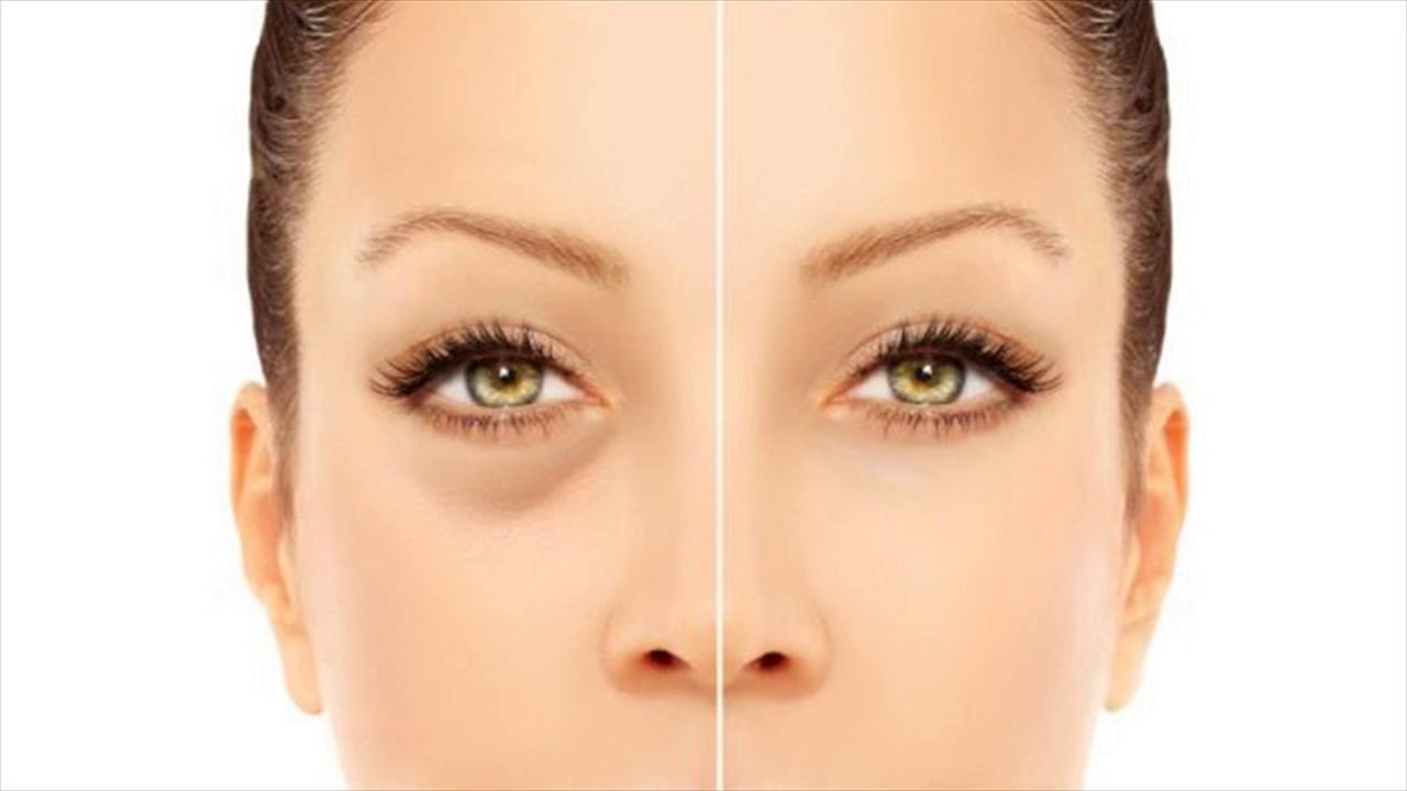 Как скрыть синяк под глазом без макияжа